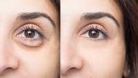 Puffy-Eyes-Before-After-Stock-Photo