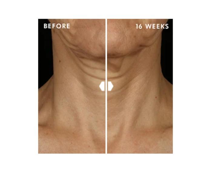 Crema para el cuello con retinol reparador de cuello Tripeptide-R