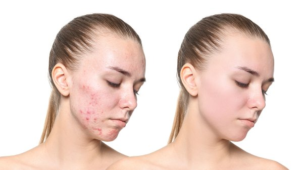 before-after-acne