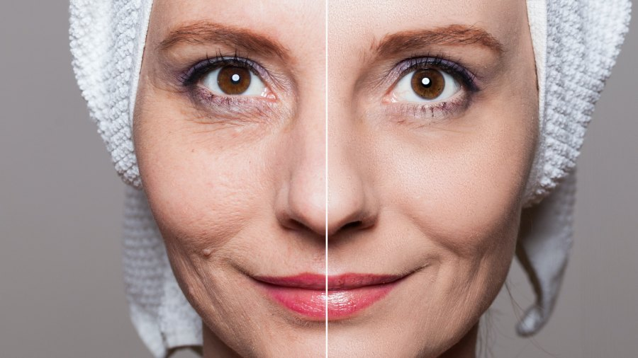 Before-After-Wrinkles-Stock-Photo
