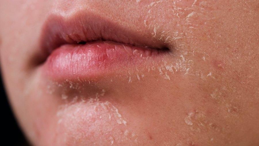 Dry-Skin-Stock-Photo