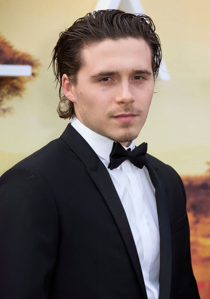 Everything We Know About Brooklyn Beckham's Body Bruising Treatment