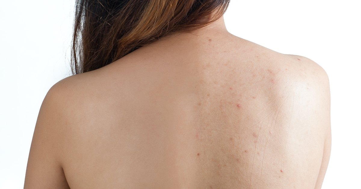Help Control Back and Chest Acne With This Innovative Spray Treatment.jpg