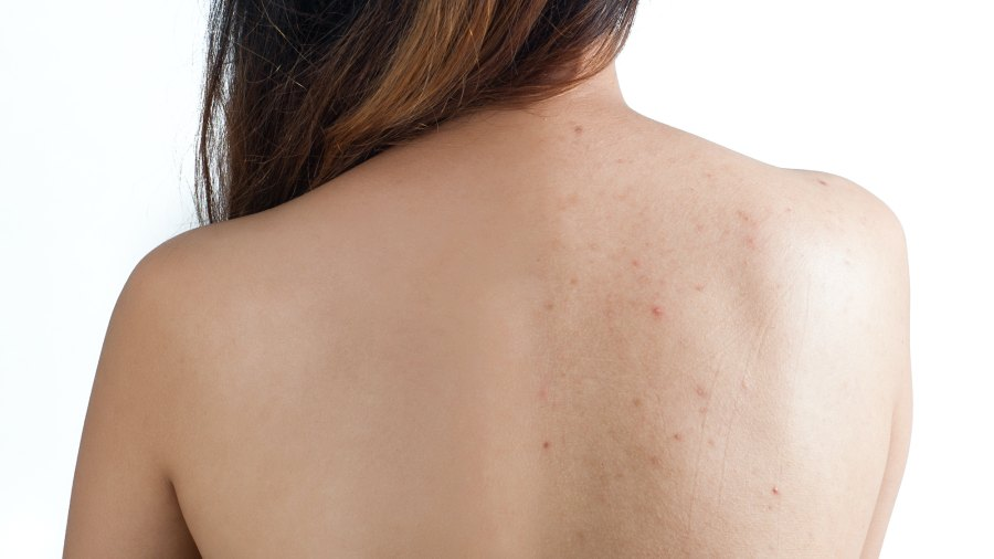 Before-After-Body-Acne-Stock-Photo