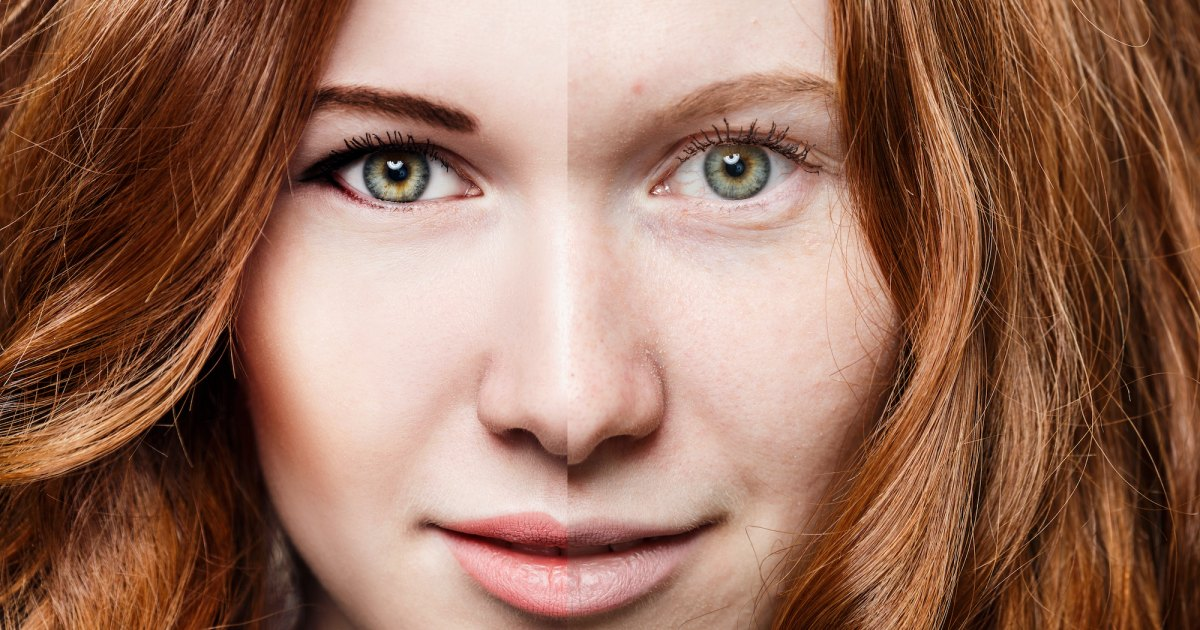 Before-After-Bright-Skin-Stock-Photo.jpg?w=1200&h=630&crop=1&quality=86&strip=all