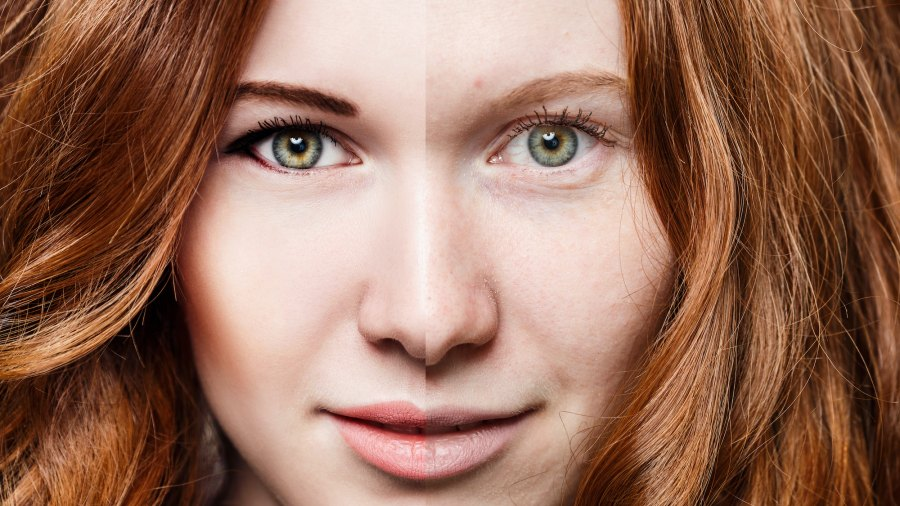 Before-After-Bright-Skin-Stock-Photo