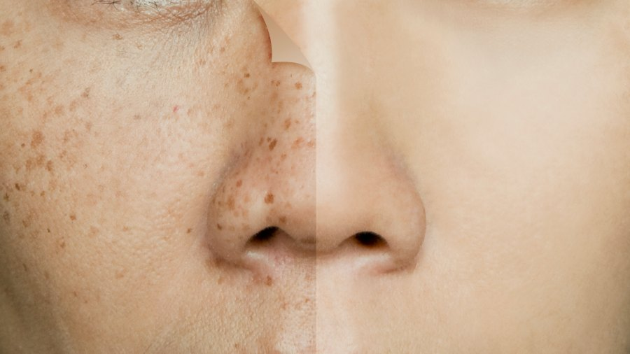 Before-After-Dark-Spots-Stock-Photo