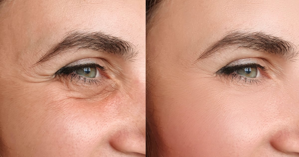 Shoppers Say This Retinol Wrinkle Treatment Is the 'Holy Grail' of Primers.jpg