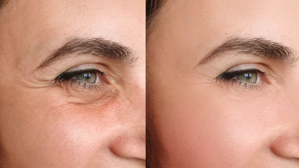 Before-After-Skin-Primer-Stock-Photo