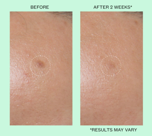 Peace Out Dark Spots Dissolving Microneedling Brightening Dots