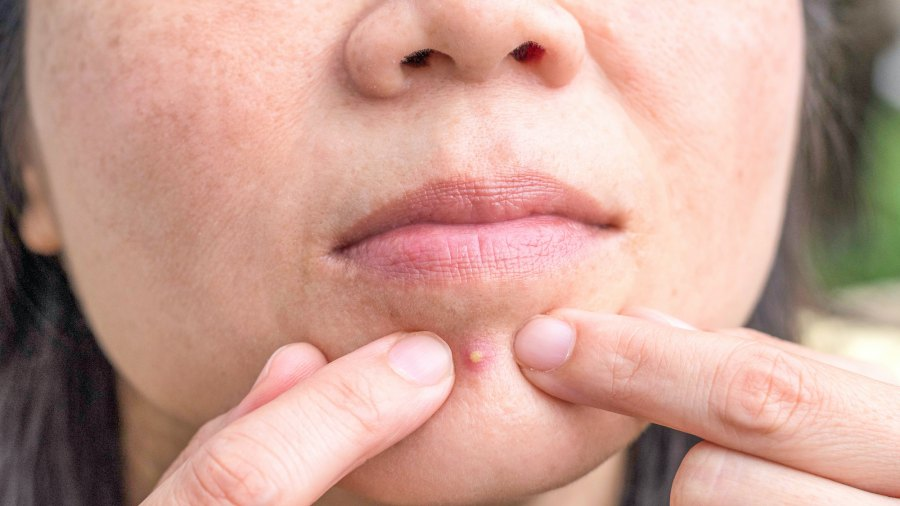 Pimple-Popping-Stock-Photo
