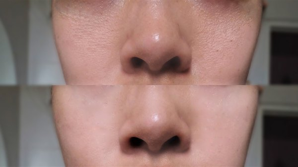 before-after-pores