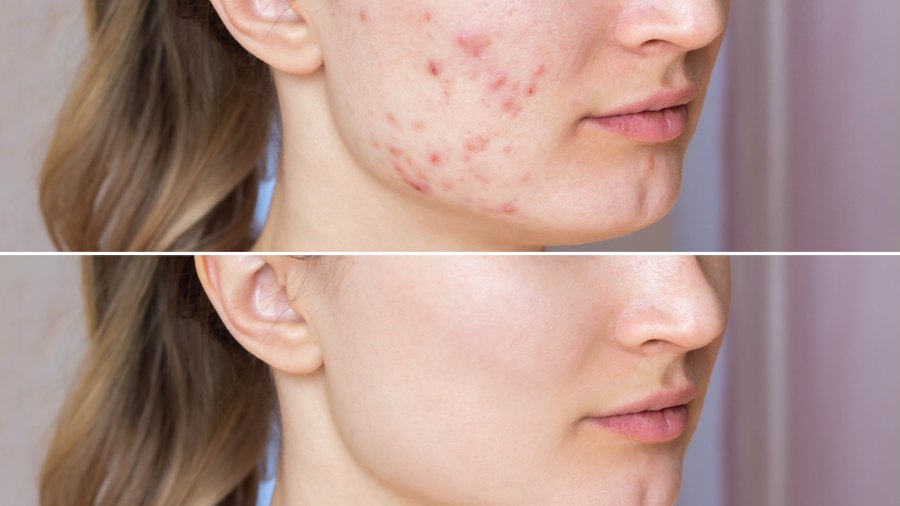 Before-After-Acne-Mask-Stock-Photo