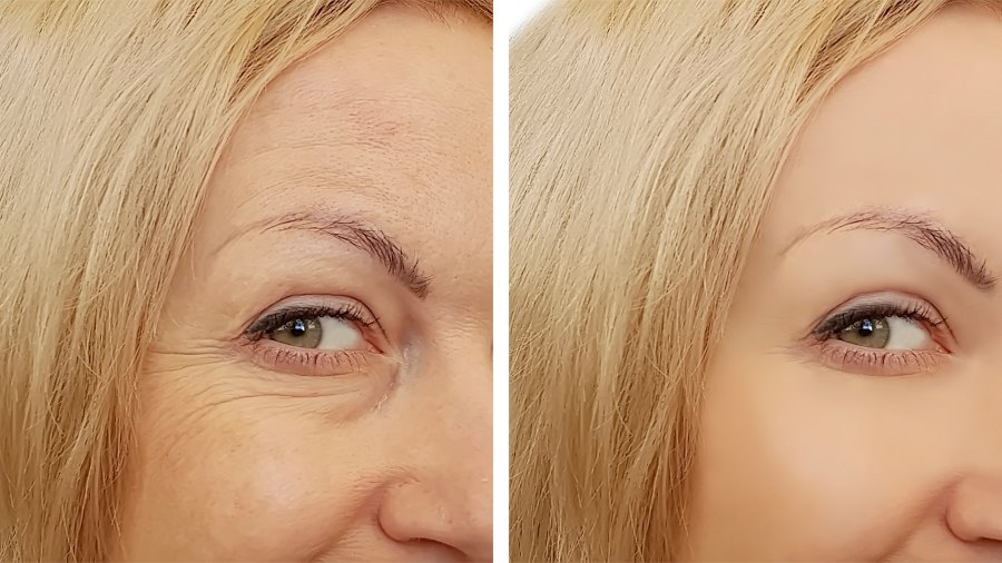 Before-After-Beauty-Wrinkle-Stock-Photo