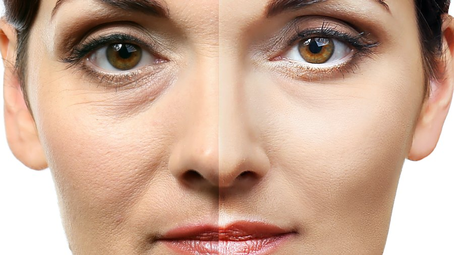 Before-After-Eye-Brightening-Stock-Photo