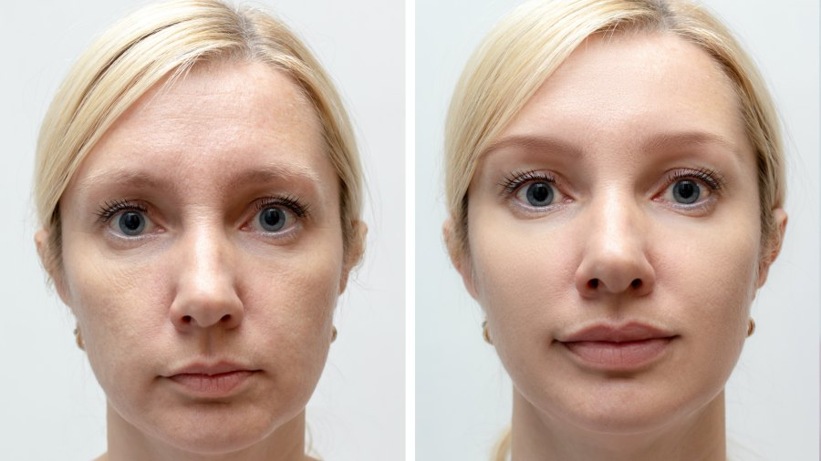 Before-After-Skin-Smoothing-Stock-Photo