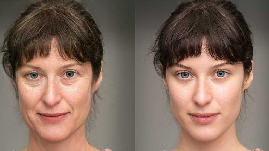 Before-After-Wrinkle-Smoother-Stock-Photo