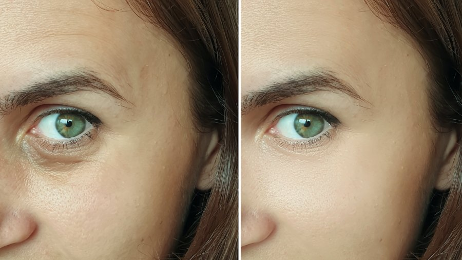 Before-After-Wrinkle-Treatment-Stock-Photo
