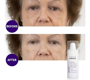 Beverly Hills Liquid Miracle Instant Facelift and Eye Serum Treatment
