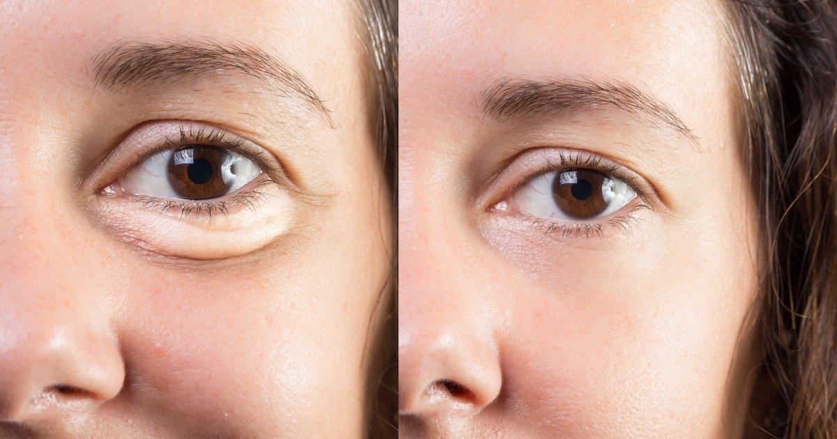 This Moisturizing Eye Cream May Dramatically Reduce Puffiness.jpg