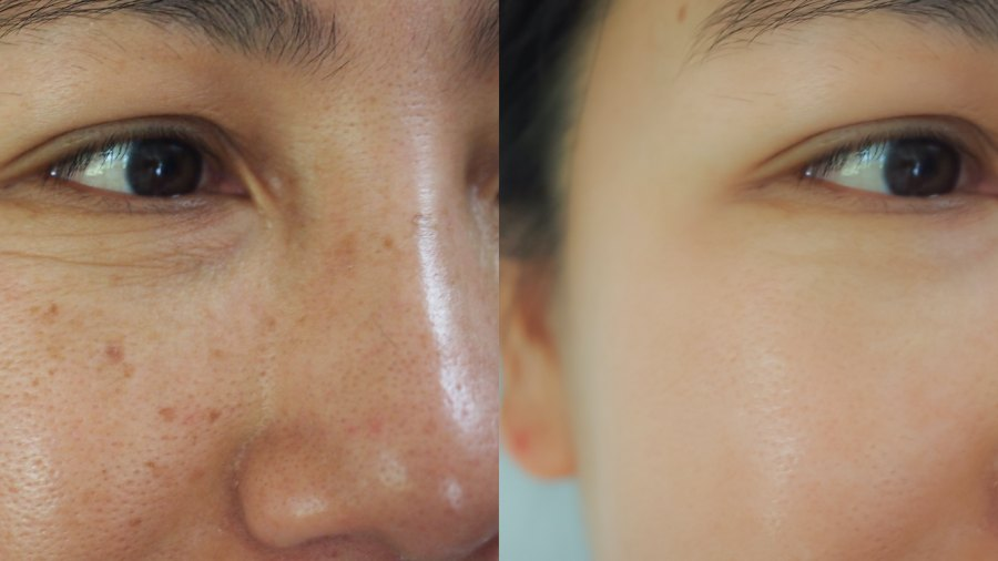 Sun-Spots-Before-After