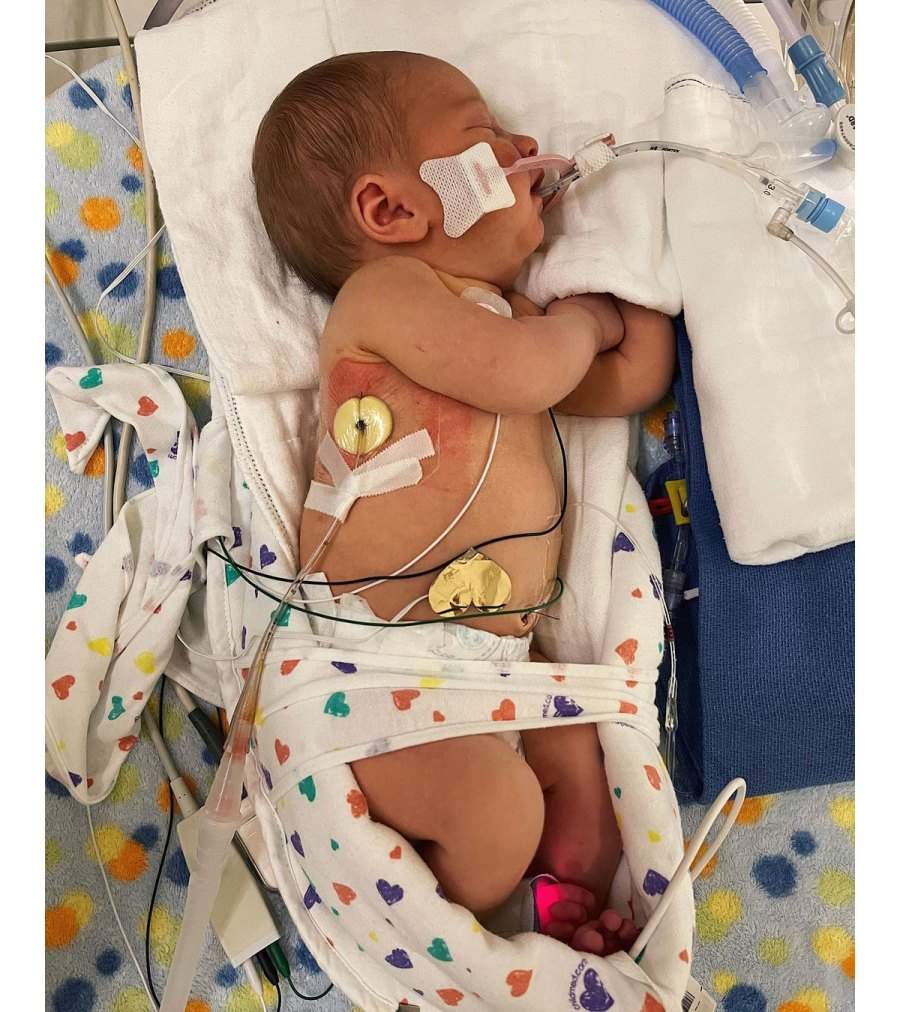 Whitney Bates Son Jadon Improving After Right Lung Collapse 2