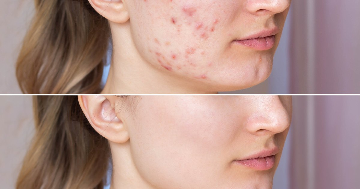 These Long 'Miracle' Patches Are Perfect for Targeting Acne Hot Spots.jpg