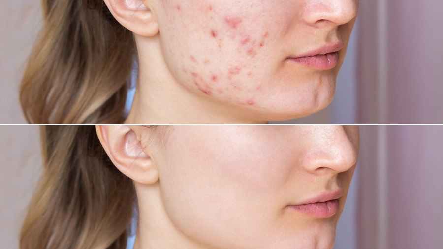 acne-patches-hot-spots