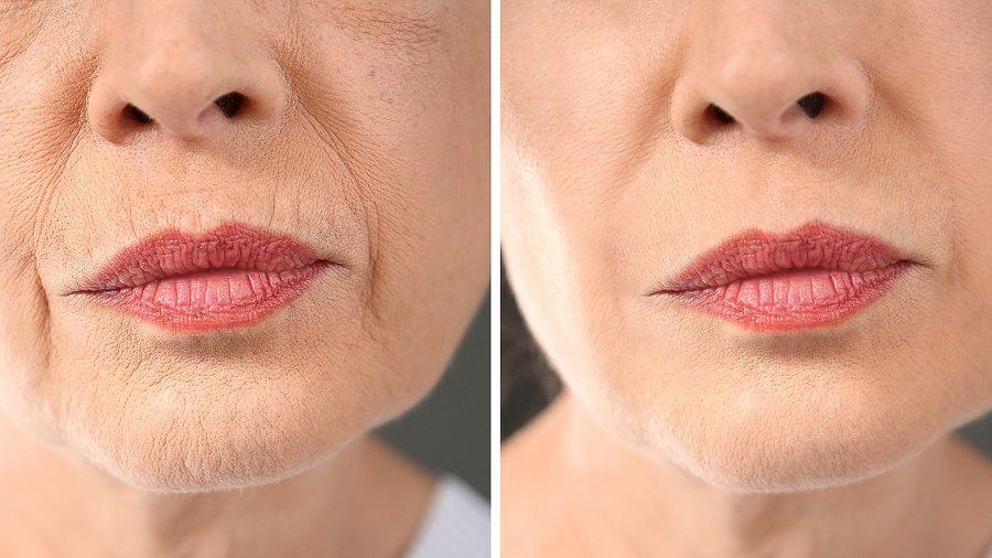 bloommy-retinol-cream-wrinkles-before-after