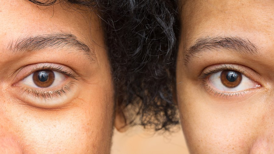 dark-circles-before-after-treatment