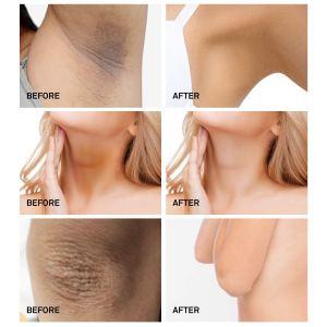 AsaVea Dark Spot Cream Natural Underarm Cream