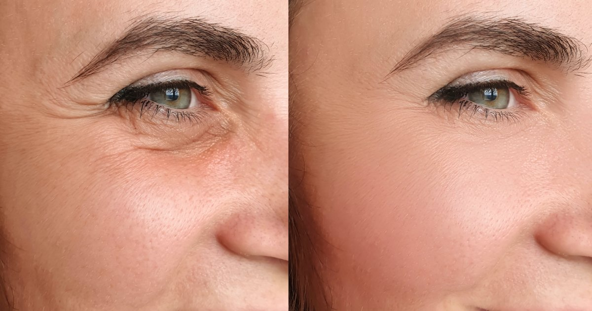 Shoppers Can't Stop Sharing Amazing Results Pics of This Anti-Aging Serum.jpg