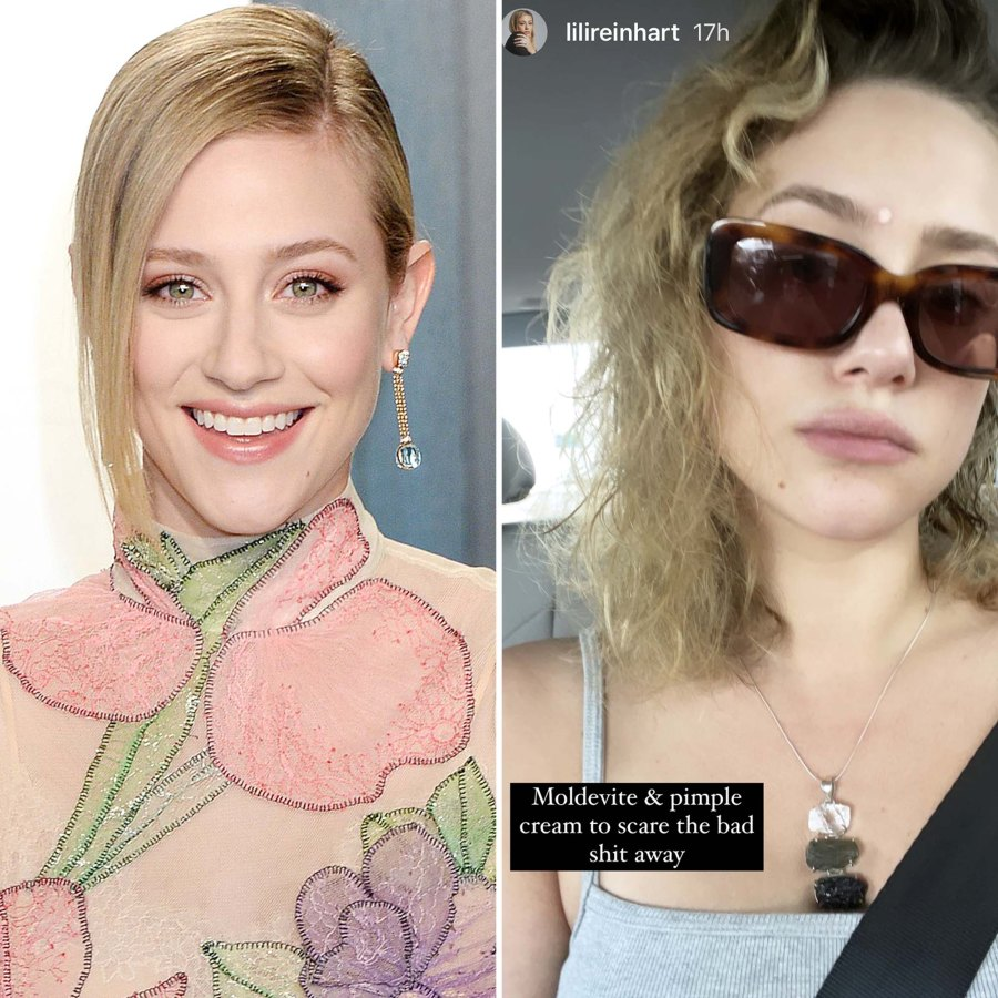 Lili Reinhart Rocking Pimple Cream Is Seriously Relatable Pic
