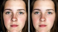 Before-After-Skincare