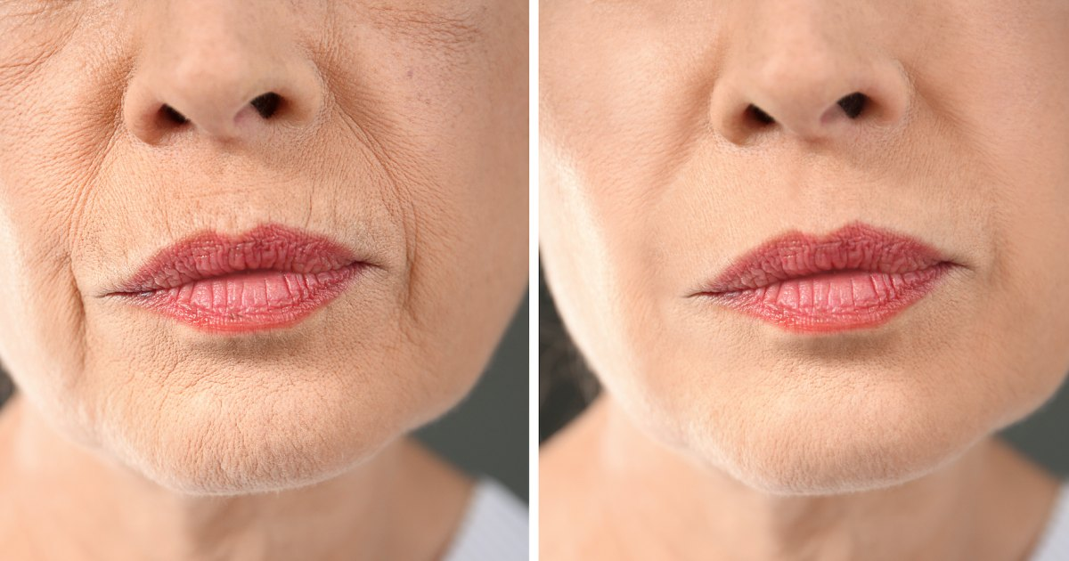 Score 20% Off This Incredible Professional-Grade Lip Wrinkle Treatment.jpg