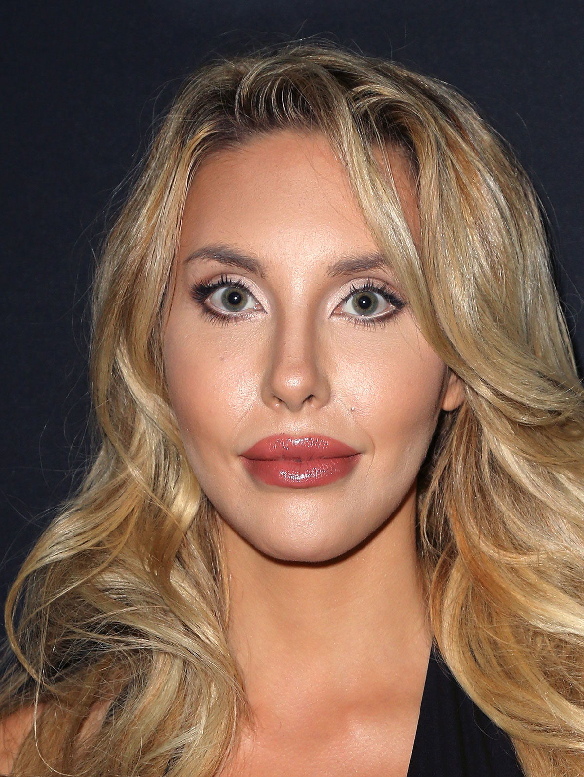 Chloe Lattanzi says she's had her lip injections removed